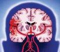 Сучасні підходи до діагностики та тактики лікування інсульту/ТІА