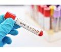 Нейробіологія COVID-19