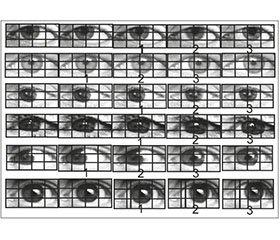 Саккадическое глазодвижение в структуре нейролептического экстрапирамидного расстройства. Взгляд невролога