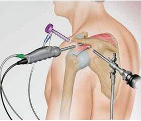 Днепропетровск артроскопия плечевого сустава крем от сильной боли в коленном суставе