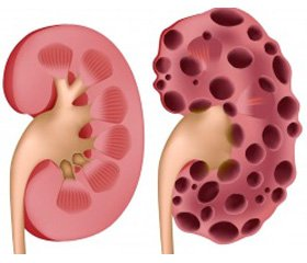 Renoprotection and its association  with eGFR and renal functional reserve