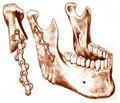 Зміни органічного та мінерального компонентів кісткової тканини нижньої щелепи зарепаративного остеогенезу на тлі хронічної інтоксикації нітратом натрію