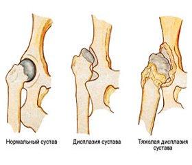 Недифференцированная дисплазия соединительной ткани опорно-двигательной системы (диагностика, лечение)