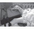 Ендопротезування кульшових та колінних суглобів у хворих на ревматоїдний артрит при їх одночасному ураженні
