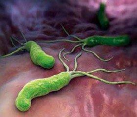 Роль бактерій роду Helicobacter в патогенезі холелітіазу