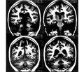 Щодо діагностики нейросифілісу в інфекційному стаціонарі