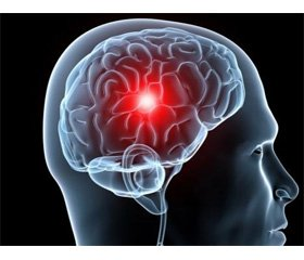 Diagnostics and correction of multiorgan disorders for critical patients with a hemorrhagic stroke