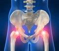 Структура пошкоджень таза при множинній тапоєднаній травмі (огляд літератури)