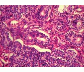 Врожденный цитомегаловирусный гепатит в ХХI веке — уже не редкость!