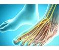 Застарелое повреждение малоберцового нерва (клиника, диагностика, лечение)