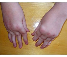 Joint Pain Perception Features in Children with Juvenile Rheumatoid Arthritis and Their Parents