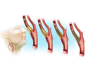 Атеросклеротическое поражение сонных артерий у пациентов с ишемической болезнью сердца
