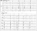 Significance of Osborn Wave in the Choice of Timely Approach to the Treatment of Patients with Hypothermia at an Example of Clinical Case