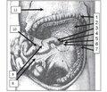 Лівобічна грижа Трейтца та стеноз doudenum удитини