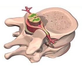 Симптоми травми спинного мозку