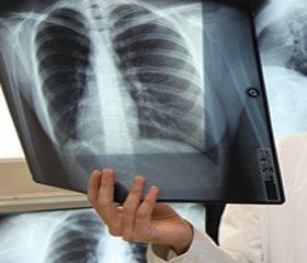 Кистозная тератома средостения у ребенка, осложнившаяся пневмотораксом