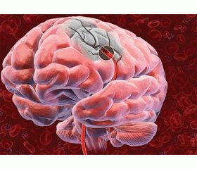 Assessment of the damage to brain tissue by immunoassay in acute ischemic stroke