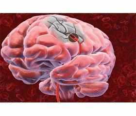 Особенности мозговых инсультов в детском возрасте (клиническое наблюдение мигренозного инсульта у девочки 17 лет)