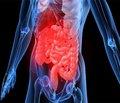 Вміст інтерлейкіну-10 в крові хворих на хронічну хворобу нирок II–III стадії з ураженням шлунка та дванадцятипалої кишки