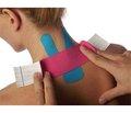 Випадок використання стрічки kinesio tape при спастичній кривошиї