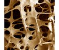 State of the Bone Tissue in the Premenopausal Women: the Frequency of  athology, Risk Factors