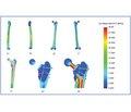 Дослідження напружено-деформованого стану моделі стегнової кістки в умовах ендопротезування при переломах її проксимального відділу