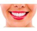 Виниры на зубы: ответы на часто задаваемые вопросы