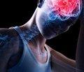 Як відрізнити струс мозку від звичайного удару?