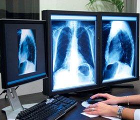 Коли потрібен панорамний рентгенологічний знімок?