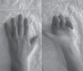 Комплексное лечение посттравматических дефектов и ложных суставов трубчатых костей кисти