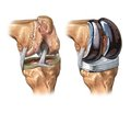 Indications and Contraindications for Arthroplasty of Tumor Defects of the Knee Joint Bones