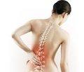 Структура кістки за TBS відображає мікроархітектуру трабекулярної кісткової тканини, отриману шляхом біопсії клубової кістки в жінок з ідіопатичним остеопорозом та низькоенергетичними переломами