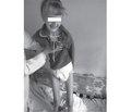 Клинический случай синдрома Луи-Бар в сочетании с эпилепсией у подростка