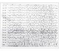 Рефлекторные эпилепсии. Эпилепсия горячей воды уребенка 10 месяцев (собственное наблюдение)