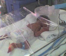 Bronchopulmonary dysplasia in premature newborns: pathogenesis, clinical features, treatment and prevention.