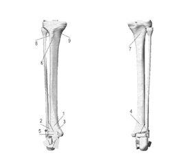 Математичне моделювання варіантів остеосинтезу переломів дистального метаепіфіза великогомілкової кістки типу С1