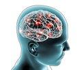Симптоми і стадії розвитку хронічної ішемії головного мозку (частина 1)