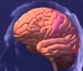 Вплив стресс-реалізуючої системи на перебіг відновного періоду інфаркту головного мозку