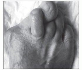 Дифференцированный подход к лечению молоткообразных деформаций пальцев стопы у взрослых