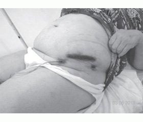 Клінічний випадок пахвинної грижі з атиповим розташуванням грижового мішка
