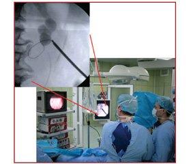 Доцільність та безпечність використання неінвазивних методів контролю показників газообміну під час операцій в положенні хворого на животі