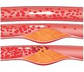 Structural and functional state ofbone and fracture risk in patients with atherosclerosis of coronary vessels