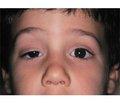 Уровень тревожности убольных миастенией