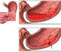 Ендоскопічні ознаки виразкової хвороби в дітей, ускладненої шлунково-кишковою кровотечею