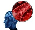 Features of fatal and nonfatal stroke outcomes