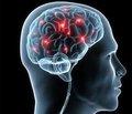 Рассеянный склероз: современный взгляд на старую проблему