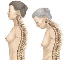 Алендронат в лечении остеопороза