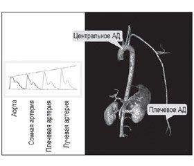 Cовременные аспекты контроля артериального давления: достаточно ли рутинного измерения? (Часть I)