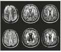 К вопросу об эффективности препарата Церебролизин у больных с «немыми» инфарктами мозга