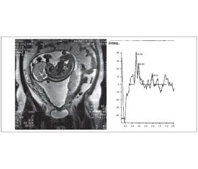 Magnetic Resonance Spectroscopy (in vivo 1H MRS) in Clinical Neurology